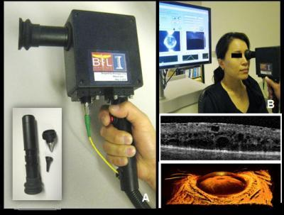 An early prototype of the handheld scanner has both OCT and video imaging capabilities and  interchangeable tips for the eyes, ears, skin and oral tissue. As one example, the device images  the retina and the anterior eye structures (bottom right).