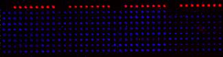 A cell microarray culture platform containing lung adenocarcinoma cells.