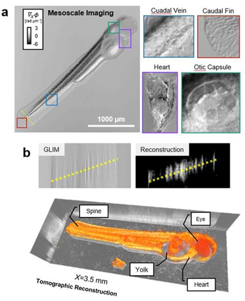 The new imaging technique (Epi-GLIM) can be used for quantitative phase imaging of whole animals. At the top, a QPI tomogram of a free-swimming larval zebrafish is shown six days post fertilization (5x/0.13) with highlighted organ scale structures. Images below show tomographic reconstruction performed using slice-by-slice high-pass filtering that provides a more detailed image for visualization purposes. (Image courtesy Gabriel Popescu)
