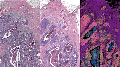 This side-by-side comparison of a breast tissue biopsy demonstrates some of the infrared-optical hybrid microscope's capabilities. On the left, a tissue sample dyed by traditional methods. Center, a computed stain created from infrared-optical hybrid imaging. Right, tissue types identified with infrared data. The pink in this image signifies malignant cancer.