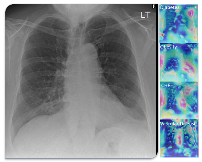 Lung scans from a COVID-19 patient.